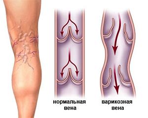 фото варикозного расширения вен ног